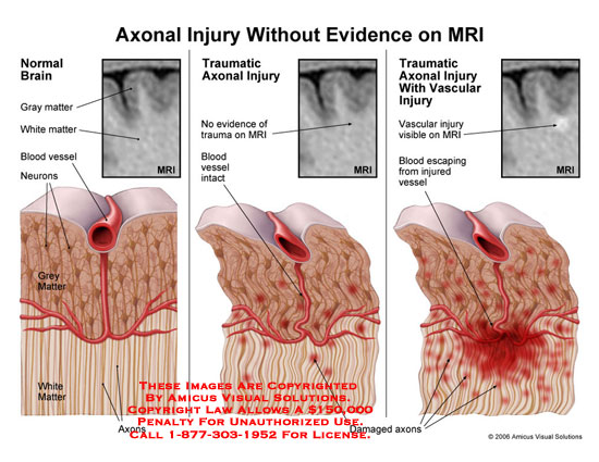 Illustrates brain injury that is not visible on MRI.