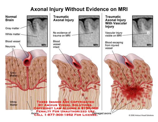 Illustrates brain injury that is not visible on MRI.