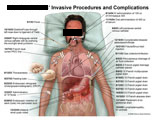 Illustration of amicus,medical,surgery,invasive,procedures,complications,tubes,drains,catheters,placement,IV,fever,barium,endotracheal,ng,nasogastric,PICC,line,thoracentesis,feeding,cholangiopancreatography,ERCP,stent,pigtail,tract,injection,atelectasis