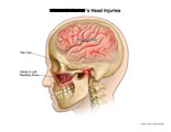 Brain concussion, TMJ pain, and debris in maxillary sinus.