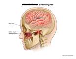 Brain concussion, TMJ pain, and debris in maxillary sinus.
