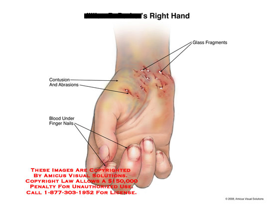 amicus,injury,hand,wrist,glass,abrasions,blood,finger,nails,palm,bruised,contusions