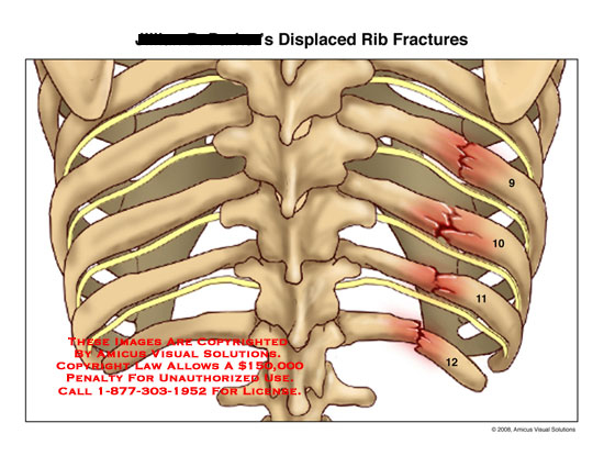 Medical diagrams and resources regarding Posterior view of fractured ribs 9-12..