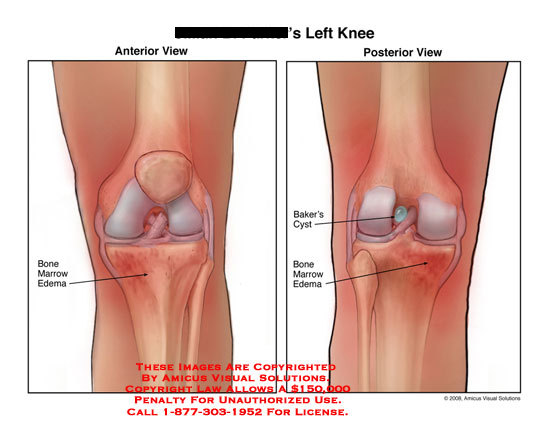 Medical diagrams and resources regarding Anterior and posterior views of knee edema and Baker