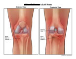 Anterior and posterior views of knee edema and Baker