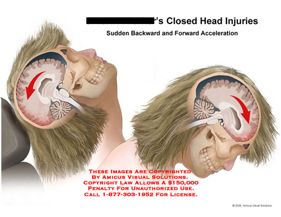 Sudden backward and forward movement of head with brain visible.