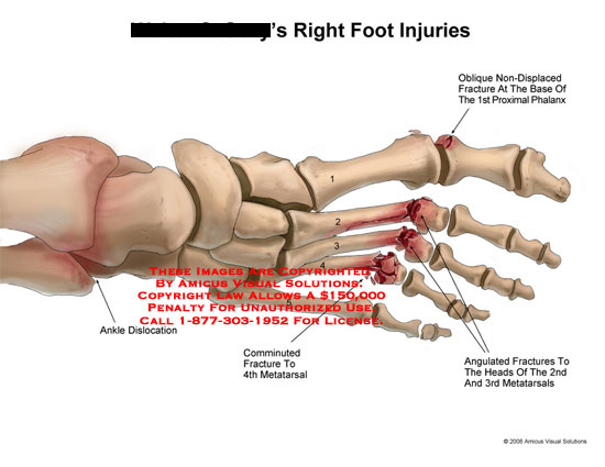 amicus,injury,foot,ankle,fractures,fractured,comminuted,metatarsals,phalanx,angulated