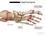 Ankle dislocation and comminuted fractures to metatarsals.