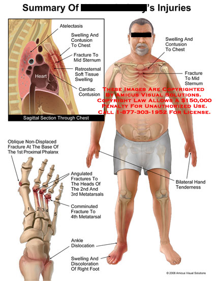 Medical diagrams and resources regarding Sternal fracture, chest injuries, and metatarsal fractures with insets..