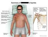Grade 3 shoulder separation and rib fractures.