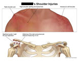 Shoulder swelling with underlying shoulder separation.