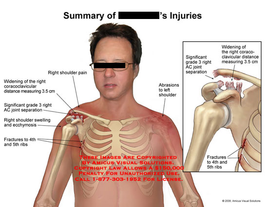 Grade 3 shoulder separation and rib fractures.