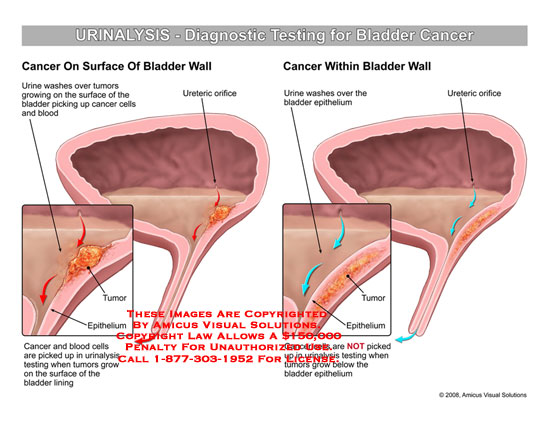 Depicts urine washing over cancer of bladder wall.