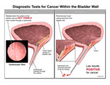 Comparison between cystoscopy and biopsy in diagnosing a tumor.