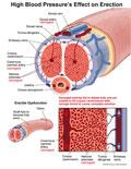 Illustration of amicus,medical,high,blood,pressure,erection,erectile,dysfunction,artery,penis,shaft,blood,cavernous,dorsal,helicine
