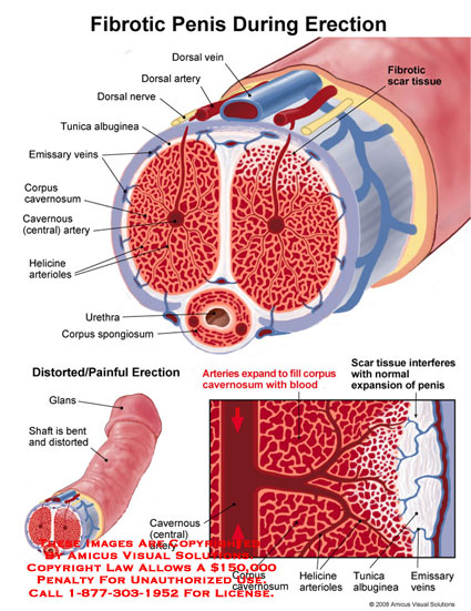 Medical diagrams and resources regarding Sectional views through erect penis with extreme blood filling..