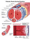 Illustration of amicus,medical,erection,fibrotic,penis,erect,extreme,distorted,painful,bent,engorged,emissary,tunic,albuginea,blood