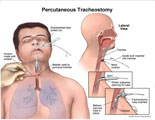 Trachea puncture and insertion of tracheostomy tube.