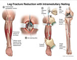 Transverse fracture with reaming and intramedullary nail insertion.