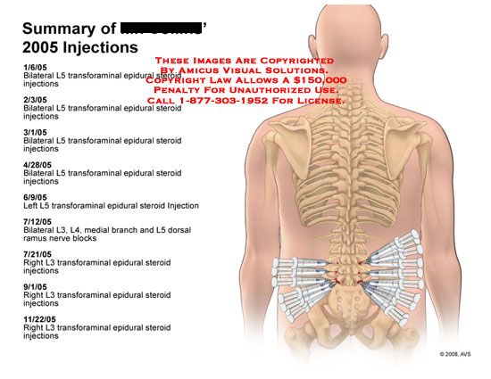 Medical diagrams and resources regarding Multiple transforaminal and trigger point injections listed..