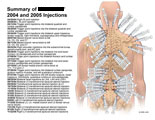 Multiple transforaminal and trigger point injections listed.