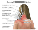 Pericervical, scapulothoracic, and subacromial injections.