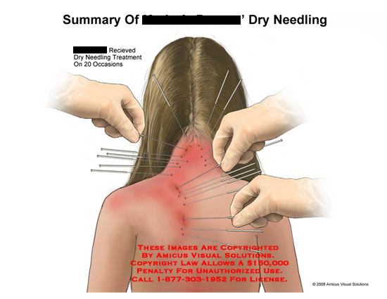 amicus,medical,summary,dry,needle,needling,muscle,spasms,relaxed,treatment,back,neck