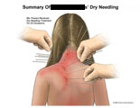 Dry needles inserted into patients back on 20 occasions.