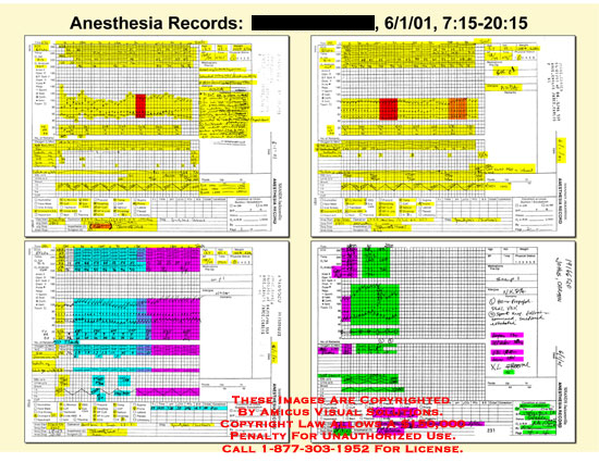 amicus,medical,anesthesia,records,highlighted