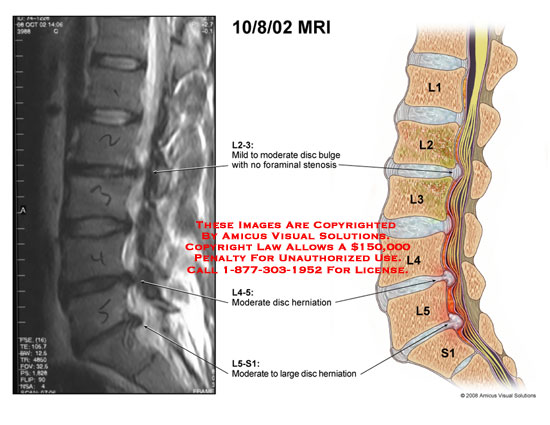 Sagittal view of lumbar spine showing disc bulges and herniations.