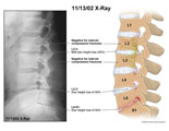 Lateral X-ray and illustration of lumbar spine showing disc height loss.