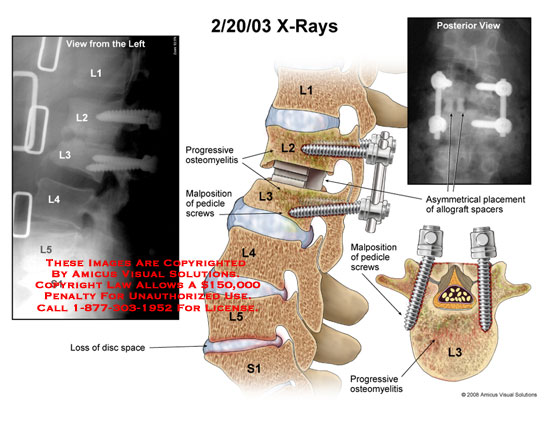 Medical diagrams and resources regarding Multiple views of asymmetric placement of hardware and spacers in L2-3..