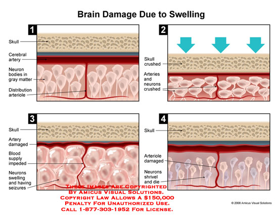 Diagrammatic images showing brain tissue being crushed, swelling, and dying.