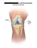 Front view of knee with torn ACL and lateral collateral ligament injury.