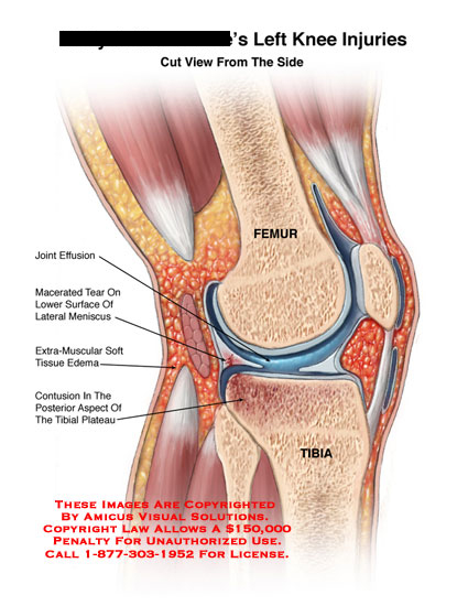 amicus,injury,knee,sagittal,joint,effusion,tear,meniscus,edema,tissue,bone,contusion,tibial