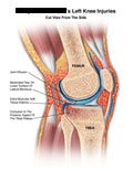 Sagittal section through knee with joint effusion, bone contusion, and meniscus tear.