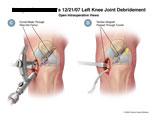 ACL repair with guide for tunnel drilling and allograft placement.