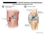 ACL repair with allograft placement and interference screws.