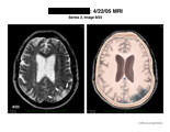 Axial MRI of brain showing infarcted area along posterior side.