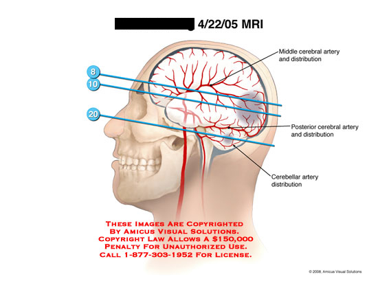 Areas of infarct shown, with MRI slice levels indicated.