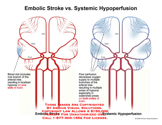 amicus,injury,medical,embolic,stroke,hypoperfusion,blood,supply,brain,cerebral,arteries,hypoxia,hypoxic,local,watershed,perfusion