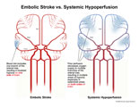 Illustration of amicus,injury,medical,embolic,stroke,hypoperfusion,blood,supply,brain,cerebral,arteries,hypoxia,hypoxic,local,watershed,perfusion