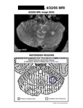 MRI of cerebellum with areas supplied by posterior cerebral artery and cerebellar artery.