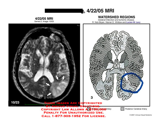 Medical diagrams and resources regarding Brain MRI next to diagram of watershed regions..