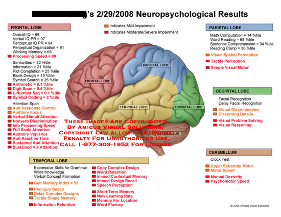 List of neurological deficits along with color coded brain.