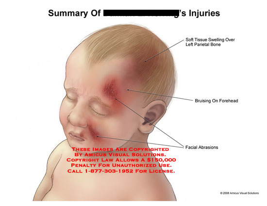 AMICUS Illustration of amicus,injury,summary,injuries ...