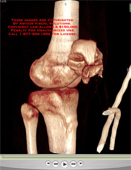 Rotating 3D volumetric rendering of patellar fracture based on CT.