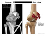 Comminuted and distracted right patella fracture.