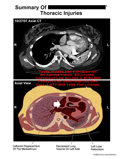 Axial CT showing displaced mediastinum and atelectasis.