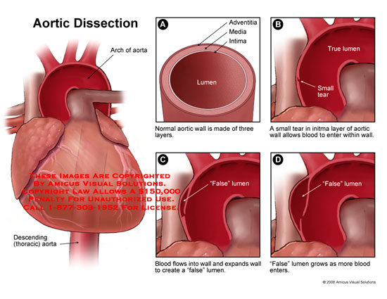 amicus,medical,aortic,dissection,aorta,heart,false,lumen,adventia,media,intima,arch,aorta,wall,occlusion,artery,section